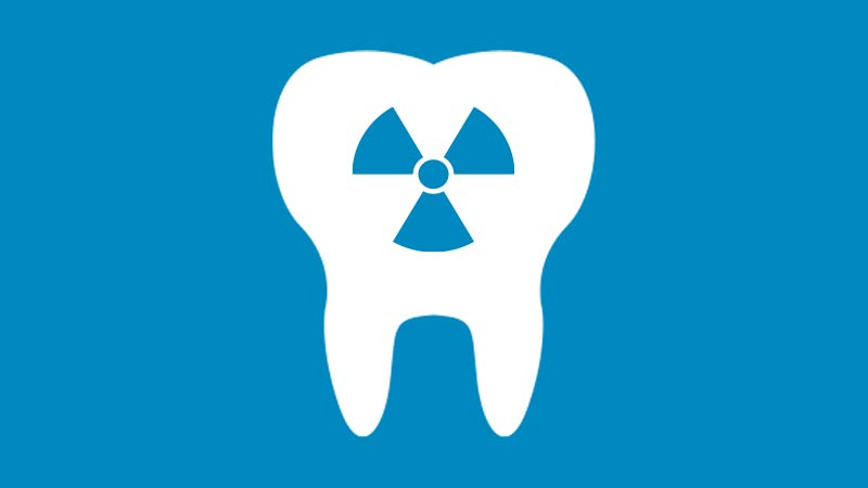 Radiografie in sede